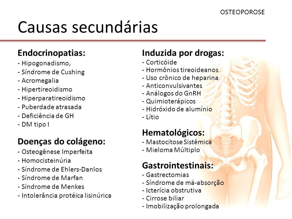 Causas secundárias OSTEOPOROSE Endocrinopatias: - Hipogonadismo, - Síndrome de Cushing - Acromegalia - Hipertireoidismo - Hiperparatireoidismo - Puber