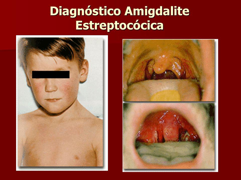 Diagnóstico Amigdalite Estreptocócica