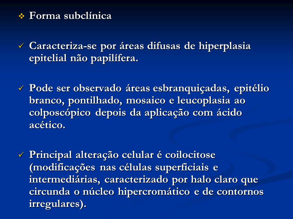 Forma subclínica Forma subclínica Caracteriza-se por áreas difusas de hiperplasia epitelial não papilífera. Caracteriza-se por áreas difusas de hiperp