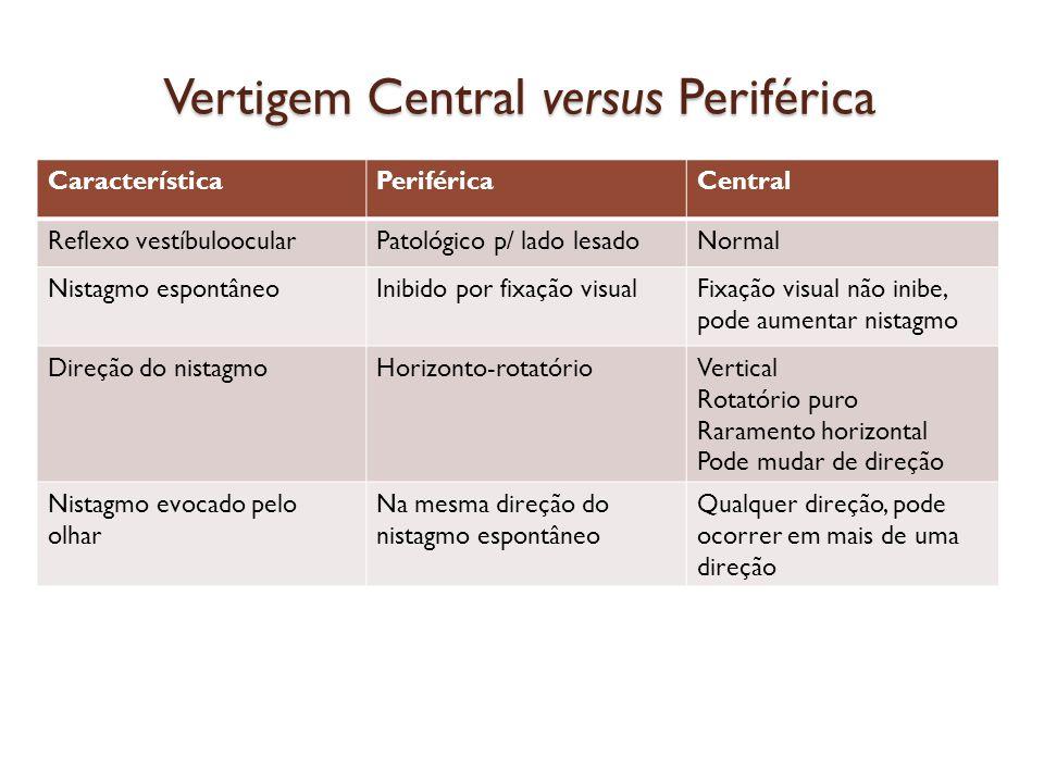 Vertigem Central versus Periférica CaracterísticaPeriféricaCentral Reflexo vestíbuloocularPatológico p/ lado lesadoNormal Nistagmo espontâneoInibido p