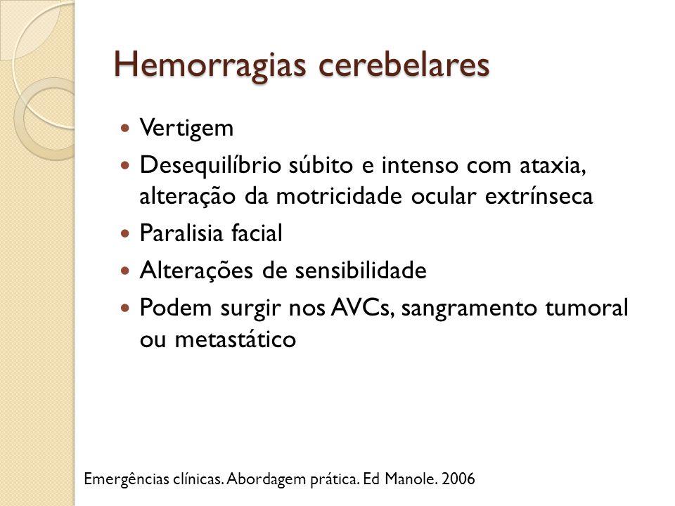 Hemorragias cerebelares Vertigem Desequilíbrio súbito e intenso com ataxia, alteração da motricidade ocular extrínseca Paralisia facial Alterações de