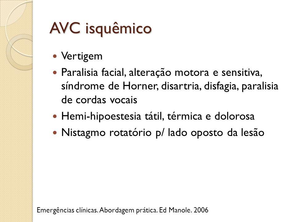 AVC isquêmico Vertigem Paralisia facial, alteração motora e sensitiva, síndrome de Horner, disartria, disfagia, paralisia de cordas vocais Hemi-hipoes
