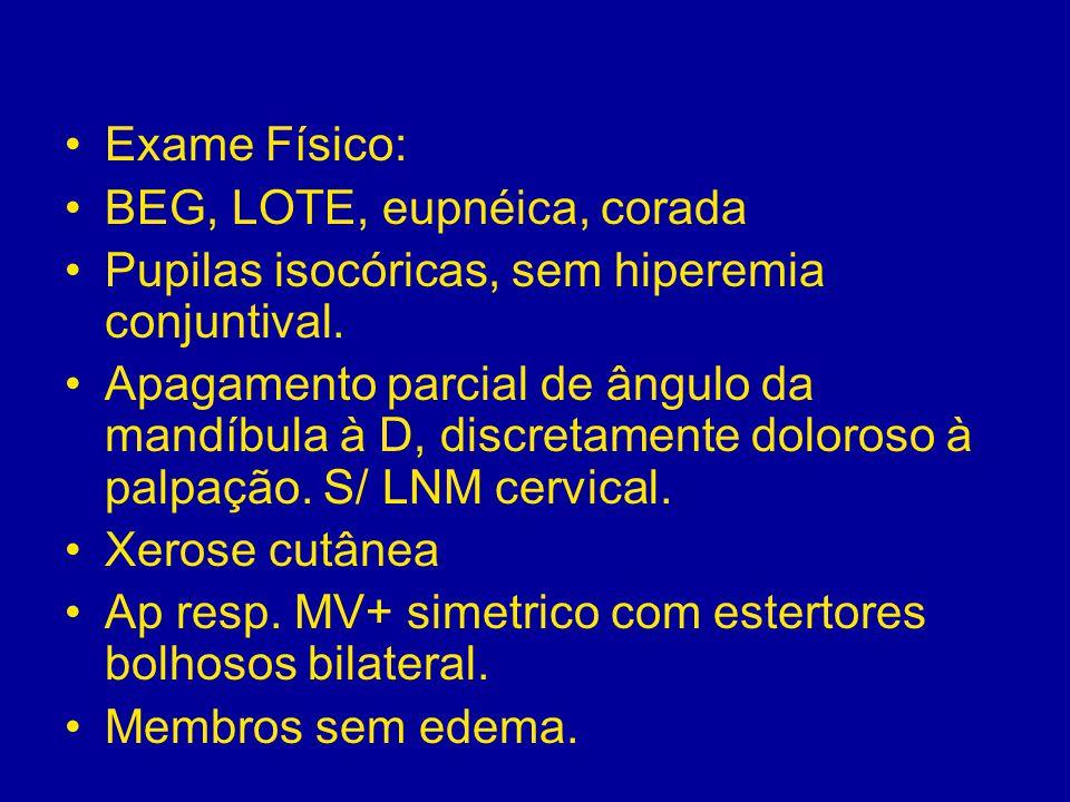 Exame Físico: BEG, LOTE, eupnéica, corada Pupilas isocóricas, sem hiperemia conjuntival. Apagamento parcial de ângulo da mandíbula à D, discretamente