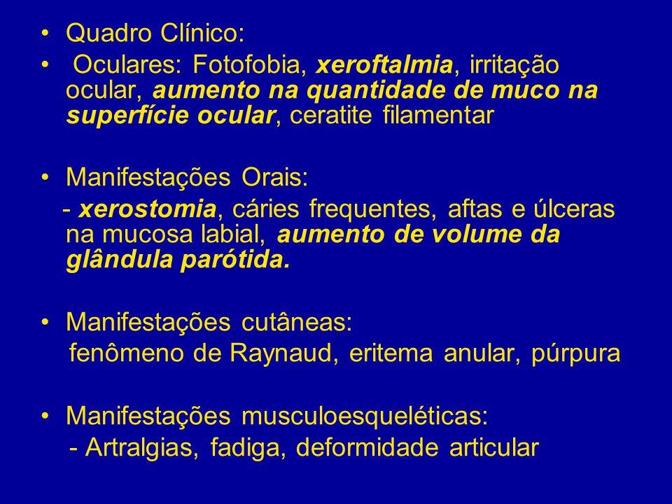 Síndrome de Sjögren Laboratório: - Anemia - VHS aumentado - PC-R normal - Hipergamaglobulinemia - Anticorpos: FAN, FR, anti SS-A, anti SS-B