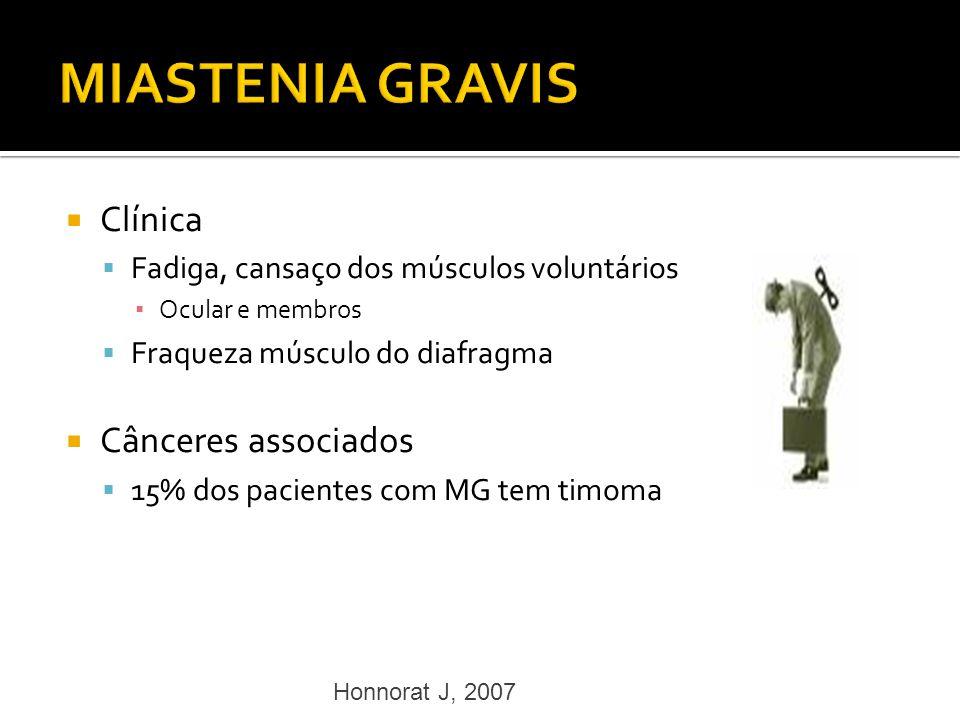 Clínica Fadiga, cansaço dos músculos voluntários Ocular e membros Fraqueza músculo do diafragma Cânceres associados 15% dos pacientes com MG tem timom