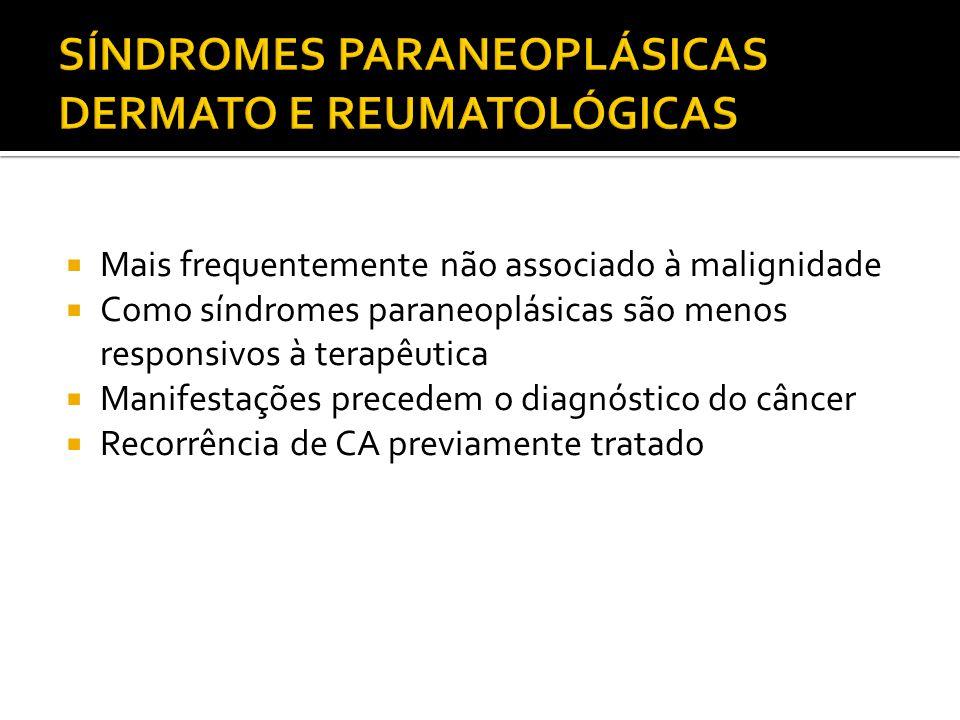 Mais frequentemente não associado à malignidade Como síndromes paraneoplásicas são menos responsivos à terapêutica Manifestações precedem o diagnóstic