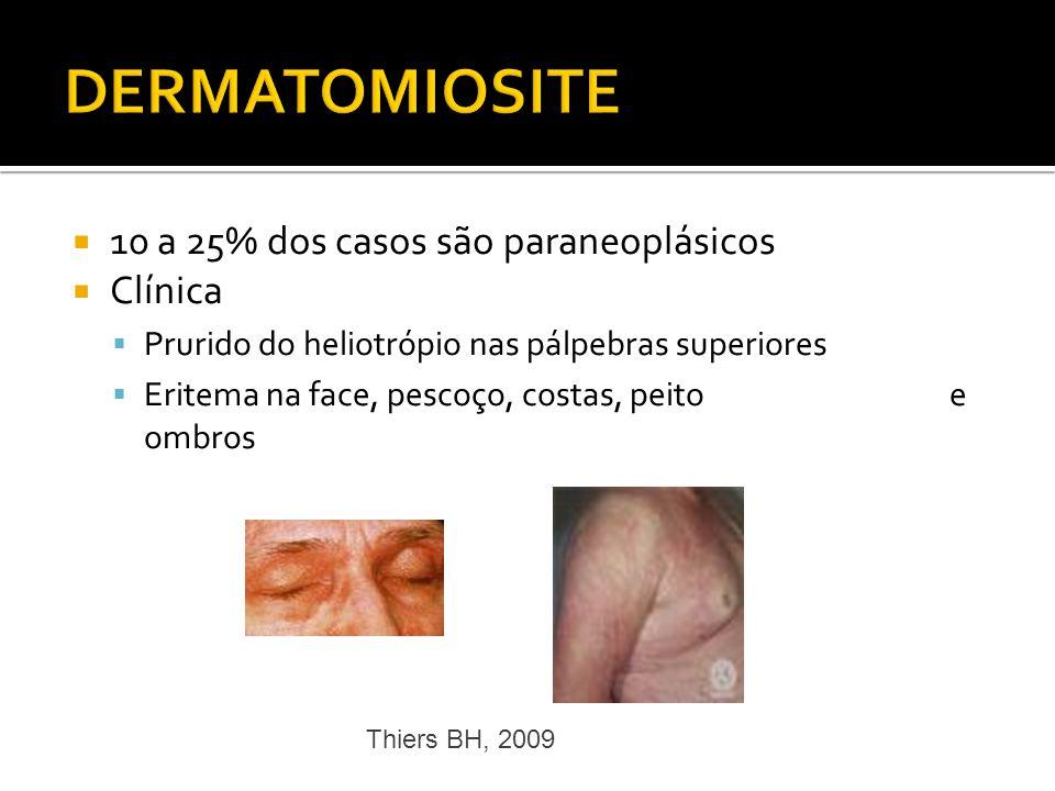 10 a 25% dos casos são paraneoplásicos Clínica Prurido do heliotrópio nas pálpebras superiores Eritema na face, pescoço, costas, peito e ombros Thiers