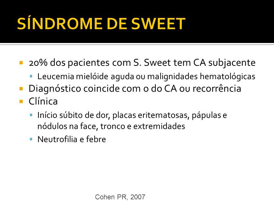 20% dos pacientes com S. Sweet tem CA subjacente Leucemia mielóide aguda ou malignidades hematológicas Diagnóstico coincide com o do CA ou recorrência
