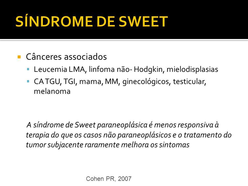 Cânceres associados Leucemia LMA, linfoma não- Hodgkin, mielodisplasias CA TGU, TGI, mama, MM, ginecológicos, testicular, melanoma A síndrome de Sweet