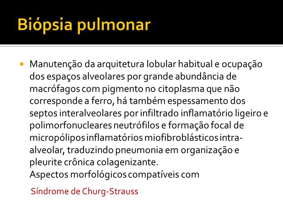 Manutenção da arquitetura lobular habitual e ocupação dos espaços alveolares por grande abundância de macrófagos com pigmento no citoplasma que não co