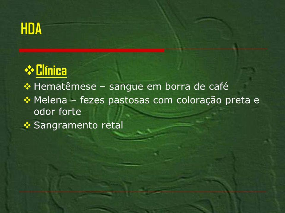 HDA Clínica Hematêmese – sangue em borra de café Melena – fezes pastosas com coloração preta e odor forte Sangramento retal