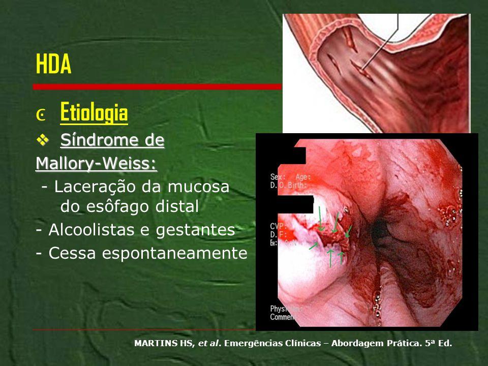 HDA Etiologia Síndrome de Síndrome deMallory-Weiss: - Laceração da mucosa do esôfago distal - Alcoolistas e gestantes - Cessa espontaneamente MARTINS