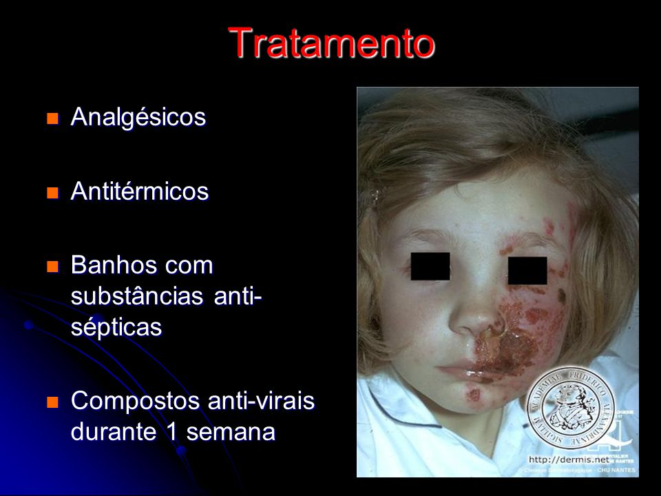 Tratamento Analgésicos Analgésicos Antitérmicos Antitérmicos Banhos com substâncias anti- sépticas Banhos com substâncias anti- sépticas Compostos ant