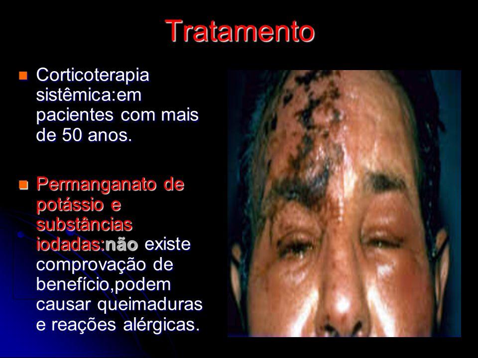 Tratamento Corticoterapia sistêmica:em pacientes com mais de 50 anos. Corticoterapia sistêmica:em pacientes com mais de 50 anos. Permanganato de potás