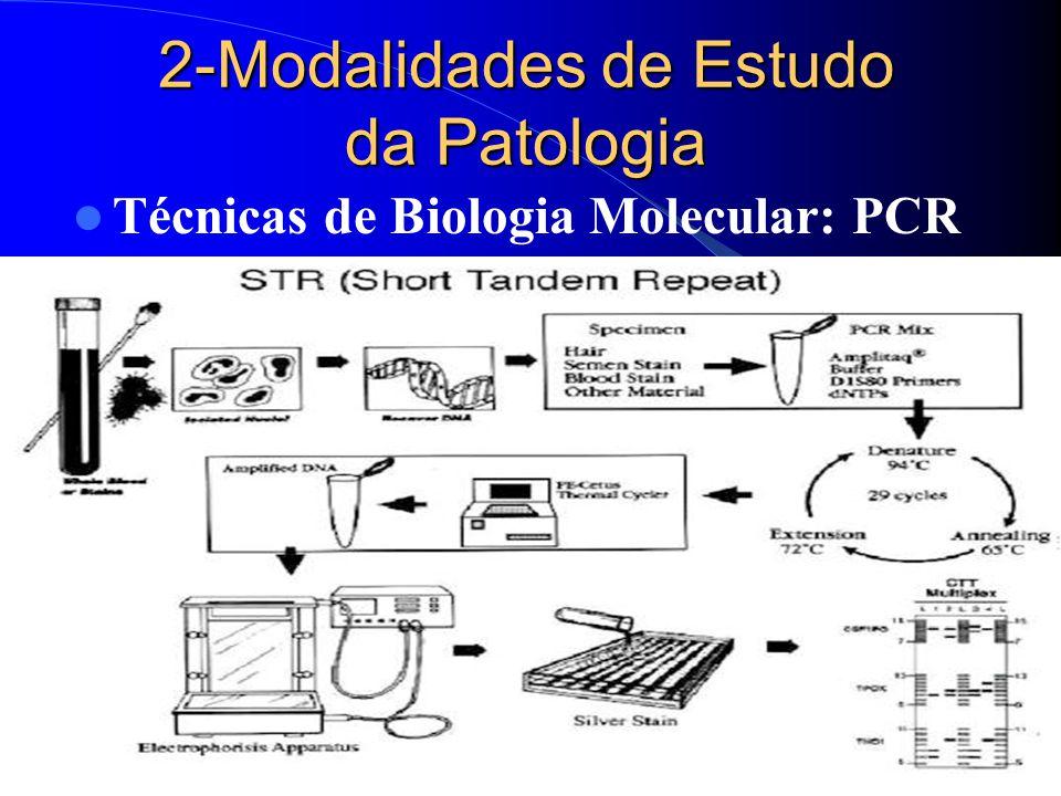 2-Modalidades de Estudo da Patologia Técnicas de Biologia Molecular: PCR