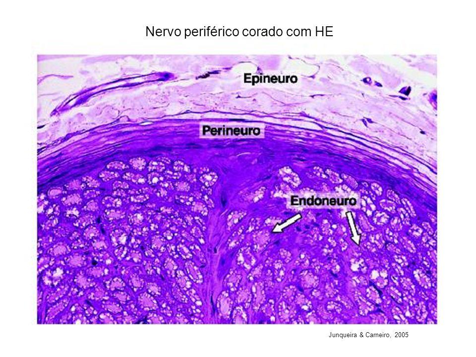 Nervo periférico corado com HE Junqueira & Carneiro, 2005