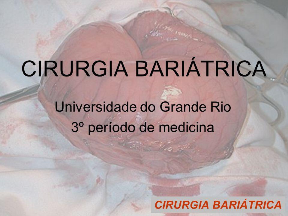CIRURGIA BARIÁTRICA Universidade do Grande Rio 3º período de medicina