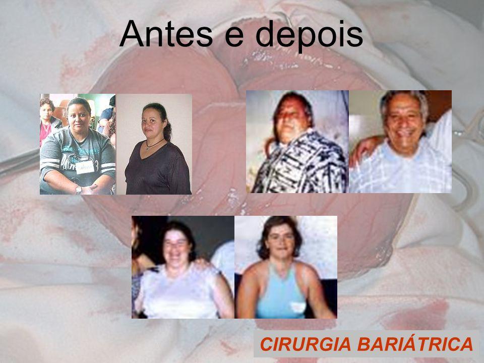 CIRURGIA BARIÁTRICA Antes e depois