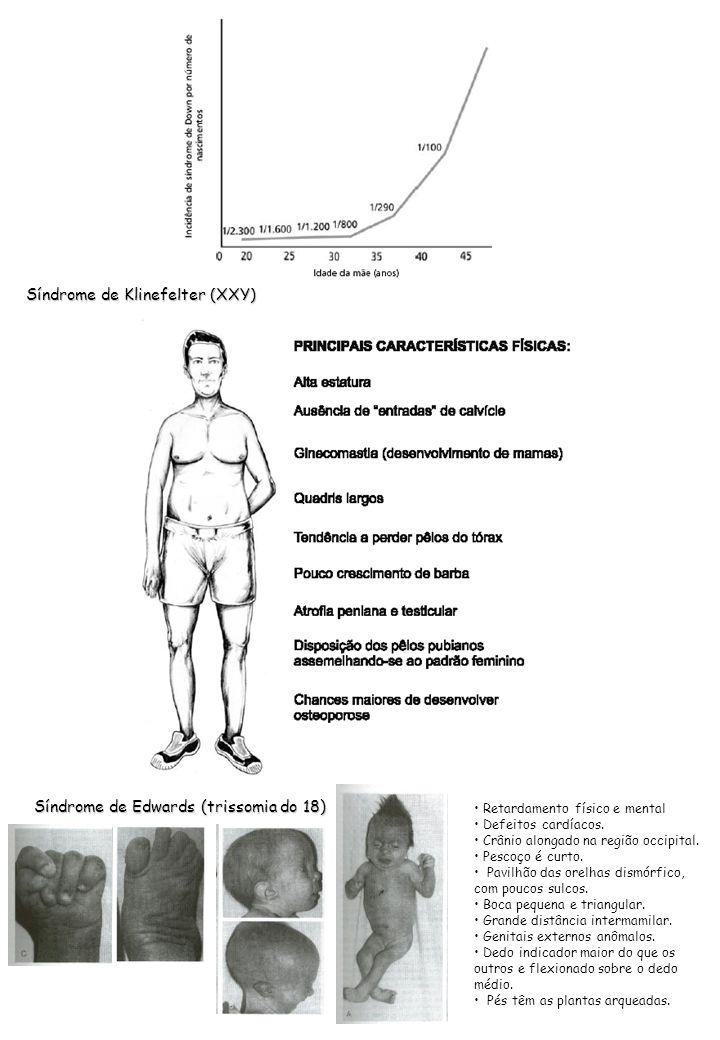 Síndrome de Klinefelter (XXY) Síndrome de Edwards (trissomia do 18) Retardamento físico e mental Defeitos cardíacos. Crânio alongado na região occipit