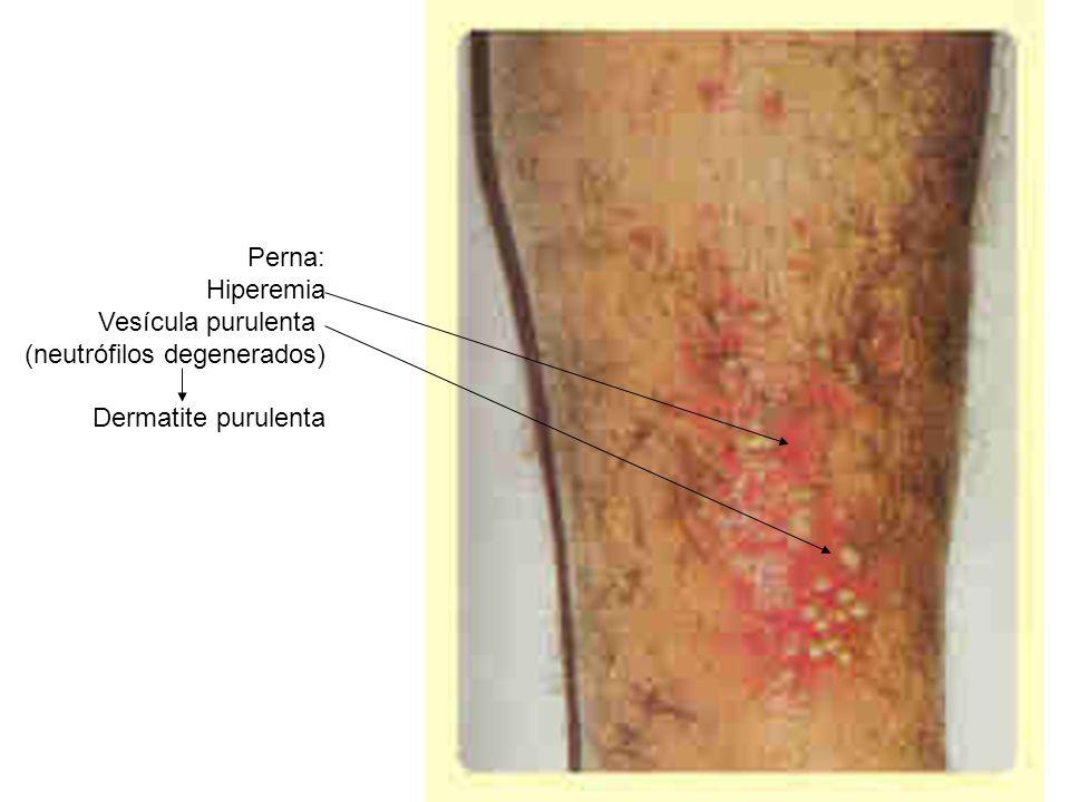 Perna: Hiperemia Vesícula purulenta (neutrófilos degenerados) Dermatite purulenta