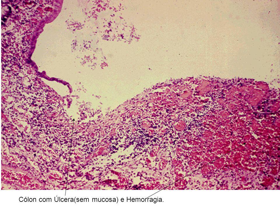 Cólon com Úlcera(sem mucosa) e Hemorragia.