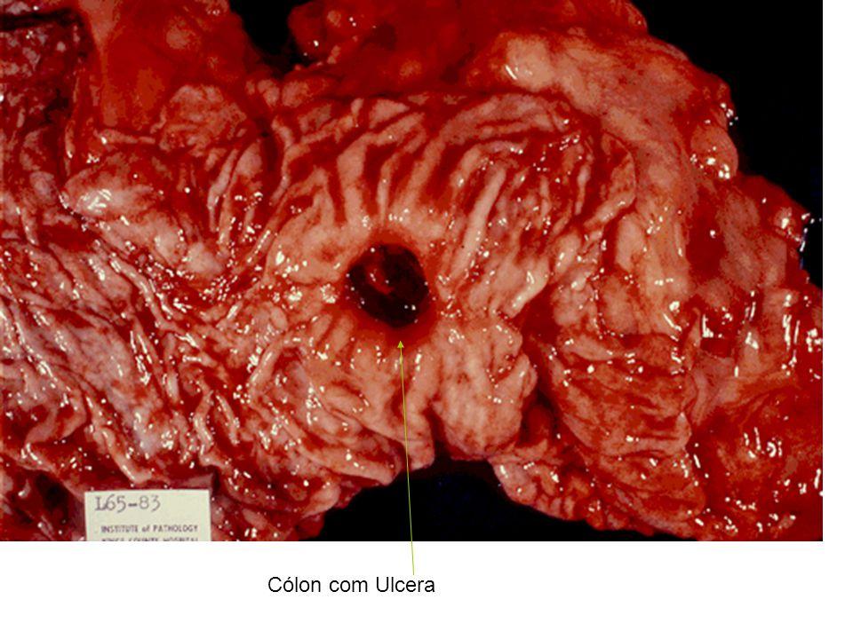Cólon com Ulcera