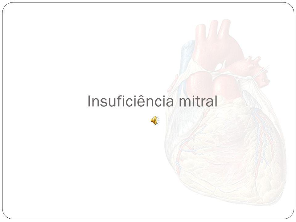 Estenose pulmonar