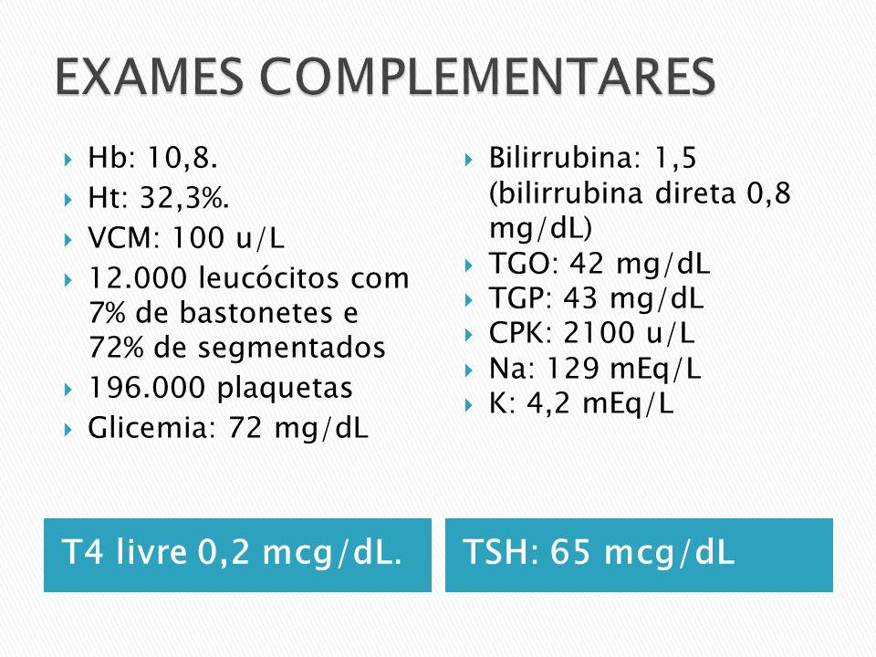 T4 livre 0,2 mcg/dL.TSH: 65 mcg/dL Hb: 10,8. Ht: 32,3%. VCM: 100 u/L 12.000 leucócitos com 7% de bastonetes e 72% de segmentados 196.000 plaquetas Gli