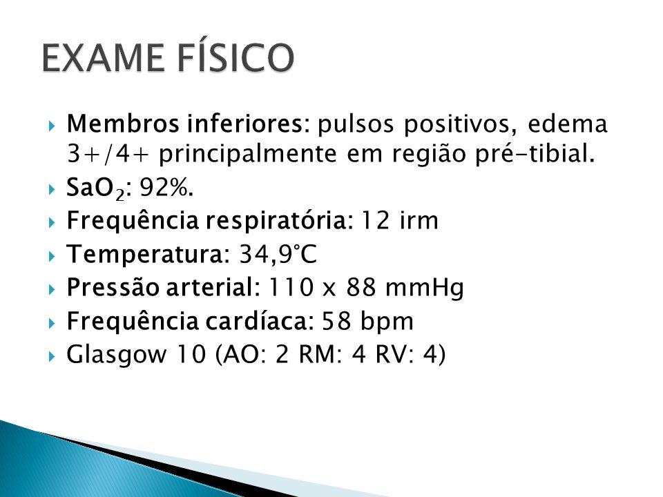Membros inferiores: pulsos positivos, edema 3+/4+ principalmente em região pré-tibial.