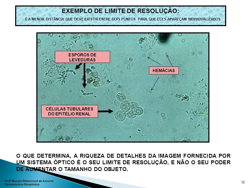 : EXEMPLO DE LIMITE DE RESOLUÇÃO: ESPOROS DE LEVEDURAS CÉLULAS TUBULARES DO EPITÉLIO RENAL O QUE DETERMINA, A RIQUEZA DE DETALHES DA IMAGEM FORNECIDA