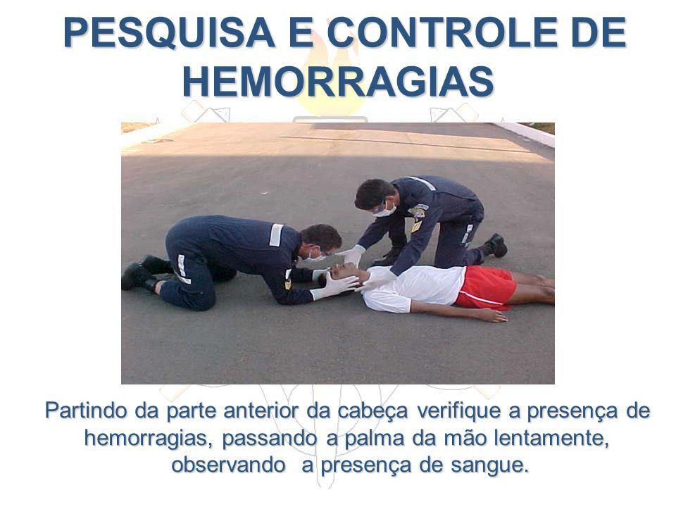 PESQUISA E CONTROLE DE HEMORRAGIAS PESQUISA E CONTROLE DE HEMORRAGIAS Partindo da parte anterior da cabeça verifique a presença de hemorragias, passan