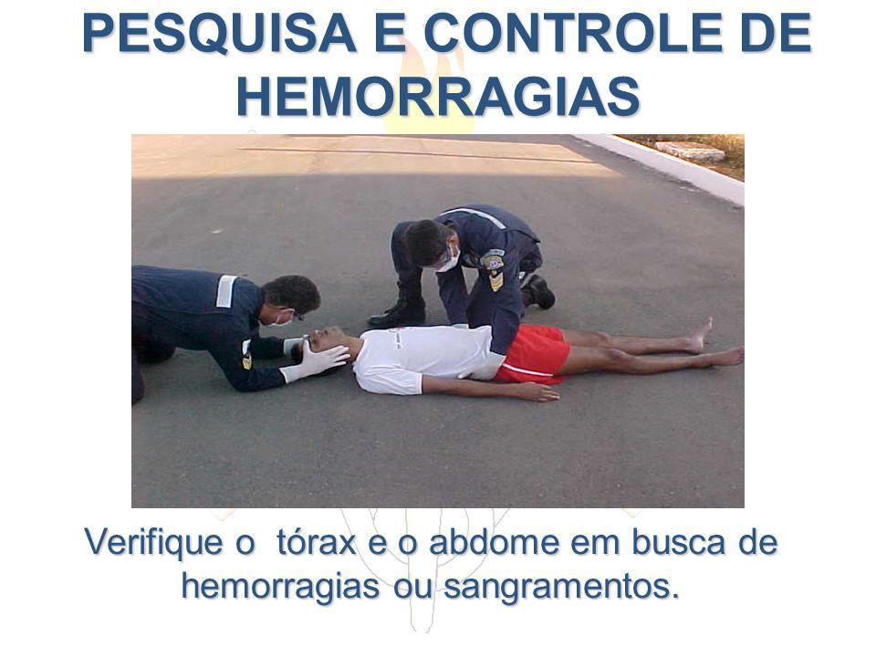 PESQUISA E CONTROLE DE HEMORRAGIAS PESQUISA E CONTROLE DE HEMORRAGIAS Verifique o tórax e o abdome em busca de hemorragias ou sangramentos.