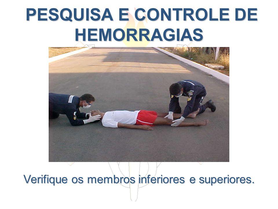 PESQUISA E CONTROLE DE HEMORRAGIAS PESQUISA E CONTROLE DE HEMORRAGIAS Verifique os membros inferiores e superiores.