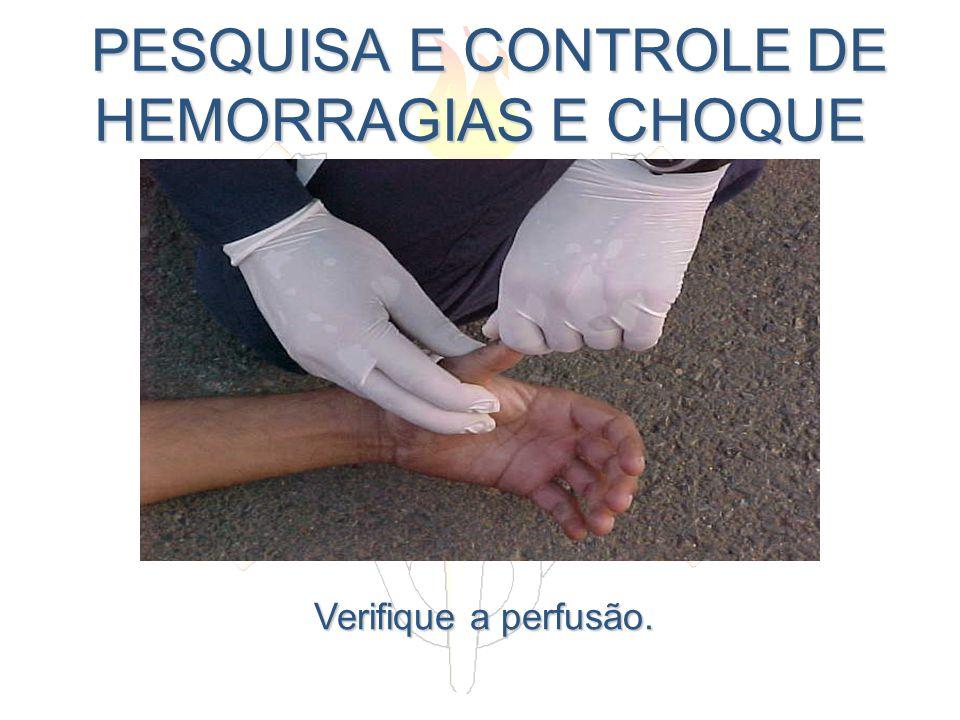 PESQUISA E CONTROLE DE HEMORRAGIAS E CHOQUE PESQUISA E CONTROLE DE HEMORRAGIAS E CHOQUE Verifique a perfusão.