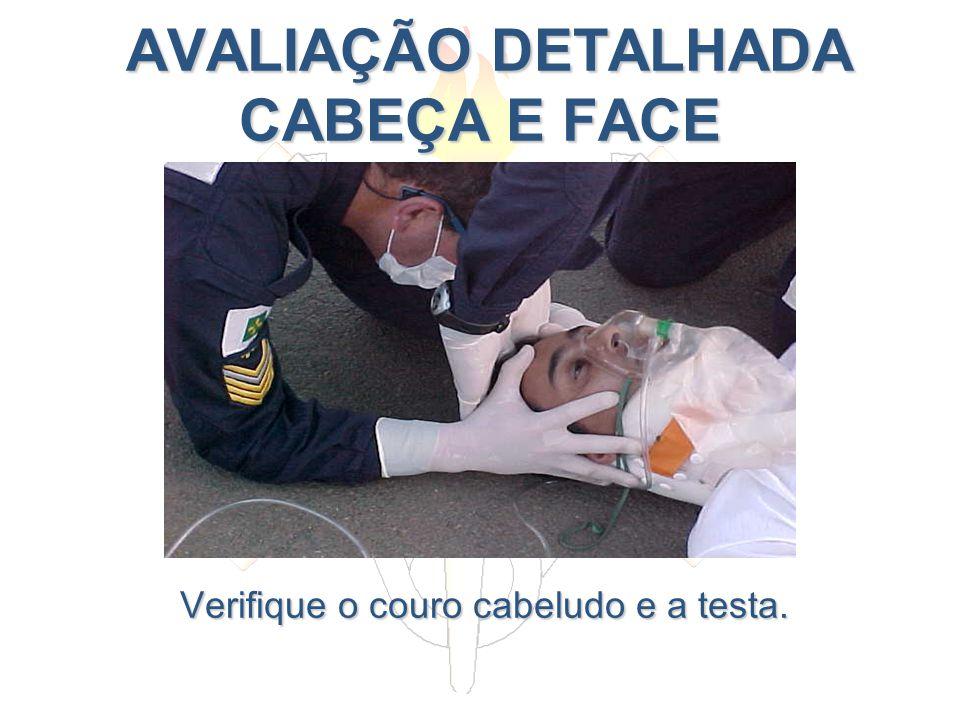 AVALIAÇÃO DETALHADA CABEÇA E FACE AVALIAÇÃO DETALHADA CABEÇA E FACE Verifique o couro cabeludo e a testa.