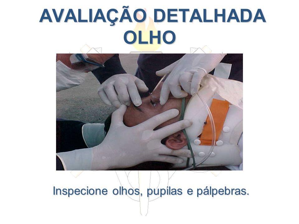 AVALIAÇÃO DETALHADA OLHO AVALIAÇÃO DETALHADA OLHO Inspecione olhos, pupilas e pálpebras.