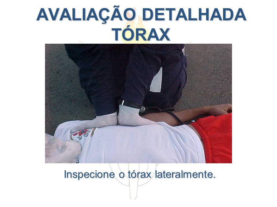 AVALIAÇÃO DETALHADA TÓRAX AVALIAÇÃO DETALHADA TÓRAX Inspecione o tórax lateralmente.