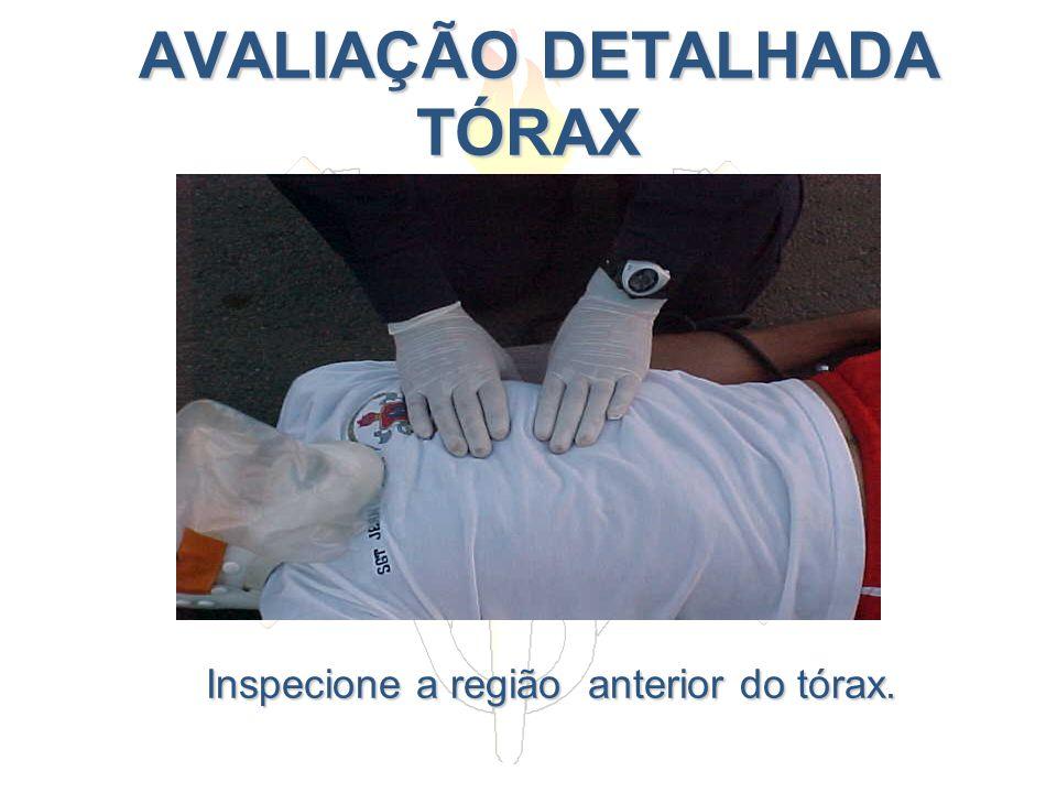 AVALIAÇÃO DETALHADA TÓRAX AVALIAÇÃO DETALHADA TÓRAX Inspecione a região anterior do tórax.