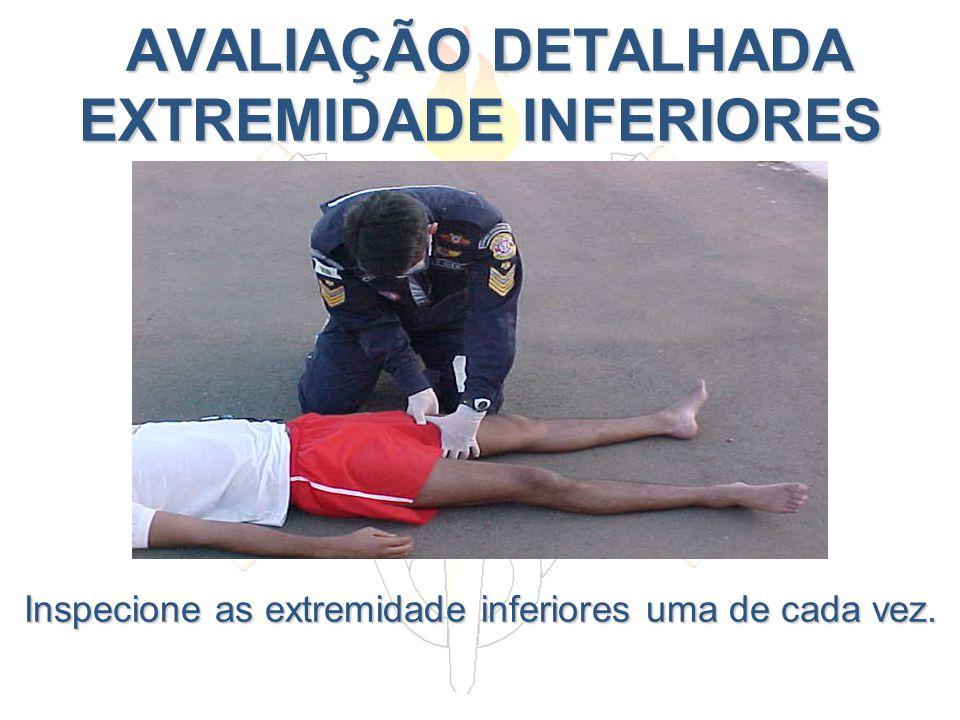AVALIAÇÃO DETALHADA EXTREMIDADE INFERIORES AVALIAÇÃO DETALHADA EXTREMIDADE INFERIORES Inspecione as extremidade inferiores uma de cada vez.