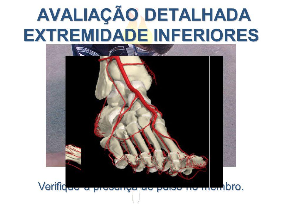 AVALIAÇÃO DETALHADA EXTREMIDADE INFERIORES AVALIAÇÃO DETALHADA EXTREMIDADE INFERIORES Verifique a presença de pulso no membro.