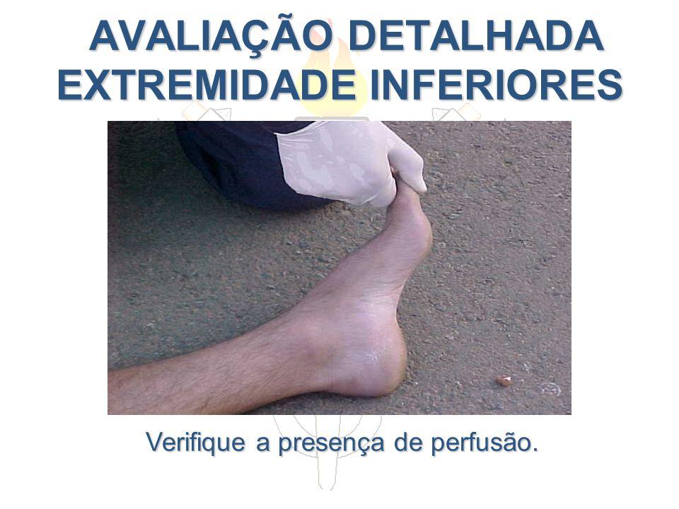 AVALIAÇÃO DETALHADA EXTREMIDADE INFERIORES AVALIAÇÃO DETALHADA EXTREMIDADE INFERIORES Verifique a presença de perfusão.