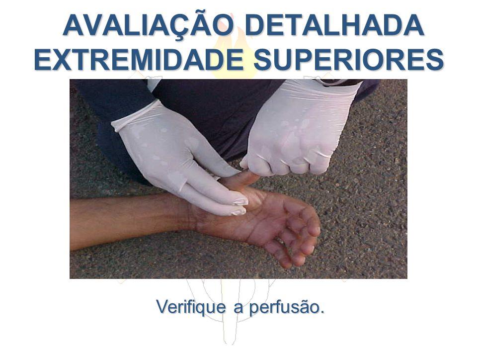 AVALIAÇÃO DETALHADA EXTREMIDADE SUPERIORES AVALIAÇÃO DETALHADA EXTREMIDADE SUPERIORES Verifique a perfusão.