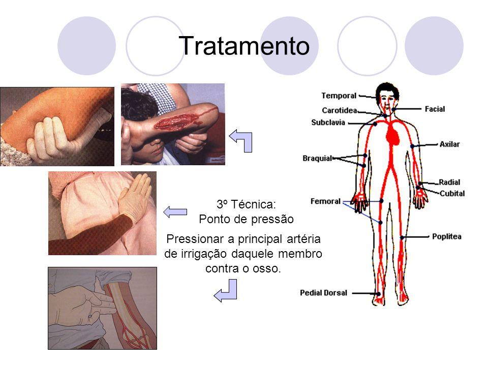 Tratamento 3º Técnica: Ponto de pressão Pressionar a principal artéria de irrigação daquele membro contra o osso.