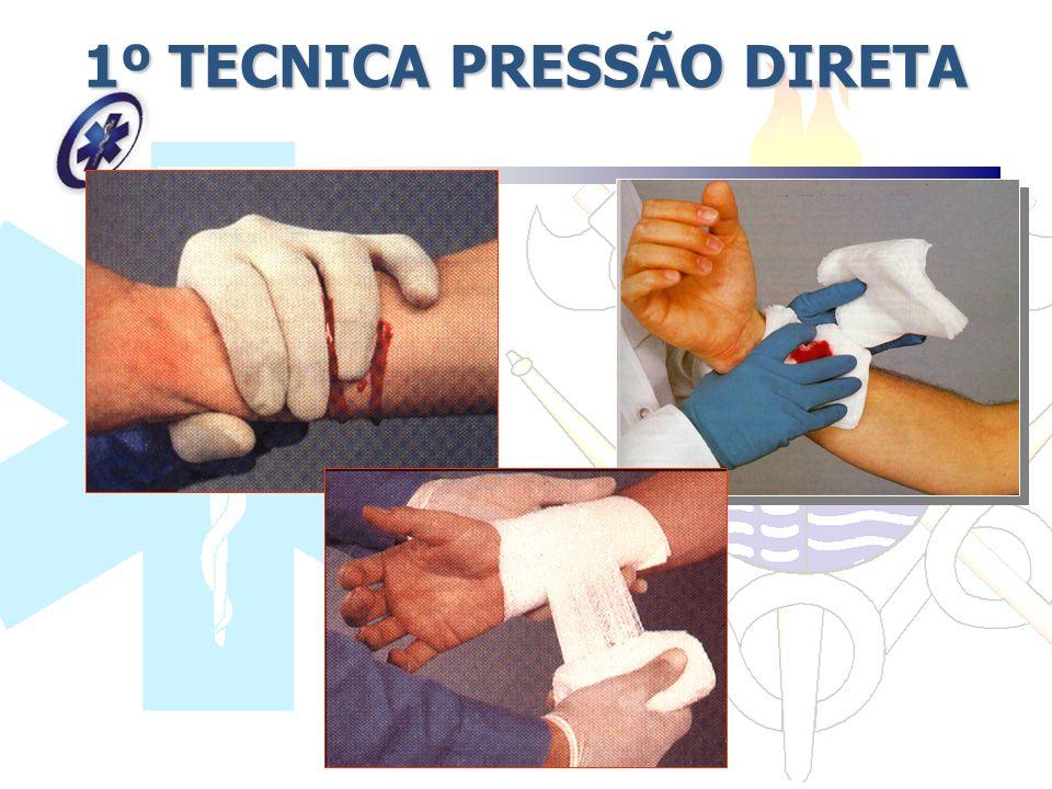 1º TECNICA PRESSÃO DIRETA