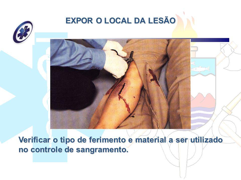EXPOR O LOCAL DA LESÃO Verificar o tipo de ferimento e material a ser utilizado no controle de sangramento.