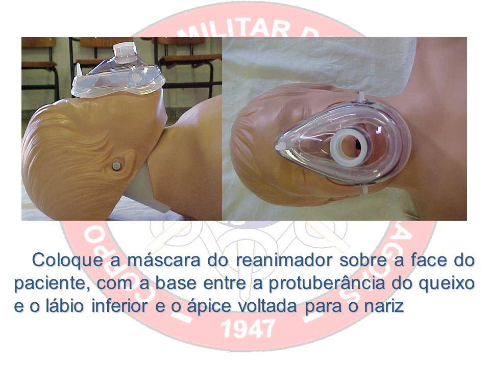 Coloque a máscara do reanimador sobre a face do paciente, com a base entre a protuberância do queixo e o lábio inferior e o ápice voltada para o nariz Coloque a máscara do reanimador sobre a face do paciente, com a base entre a protuberância do queixo e o lábio inferior e o ápice voltada para o nariz