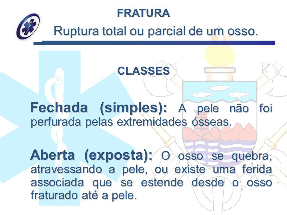 CLASSES Fechada (simples): A pele não foi perfurada pelas extremidades ósseas. Fechada (simples): A pele não foi perfurada pelas extremidades ósseas.