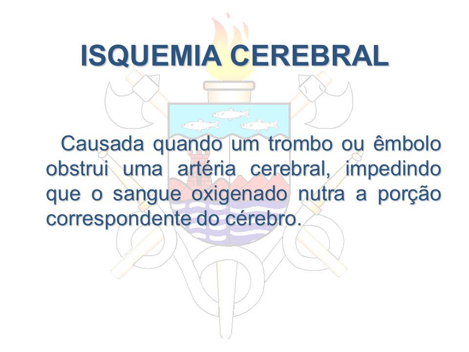 ISQUEMIA CEREBRAL Causada quando um trombo ou êmbolo obstrui uma artéria cerebral, impedindo que o sangue oxigenado nutra a porção correspondente do c