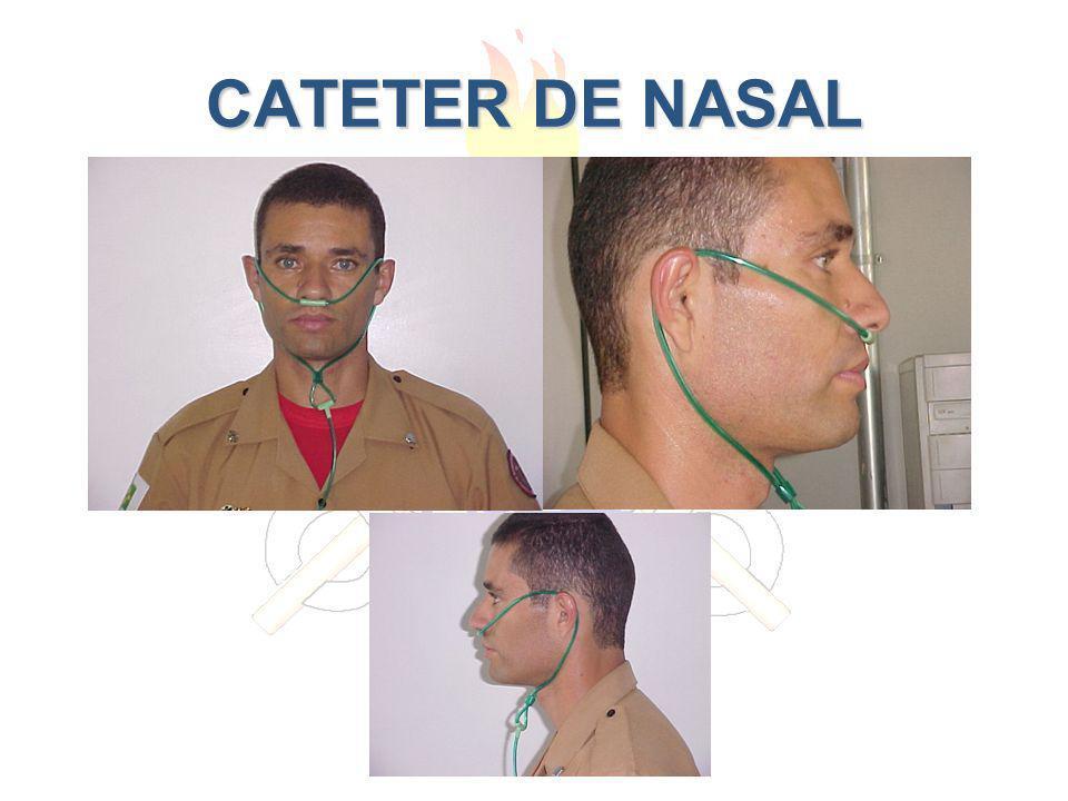 CATETER DE NASAL