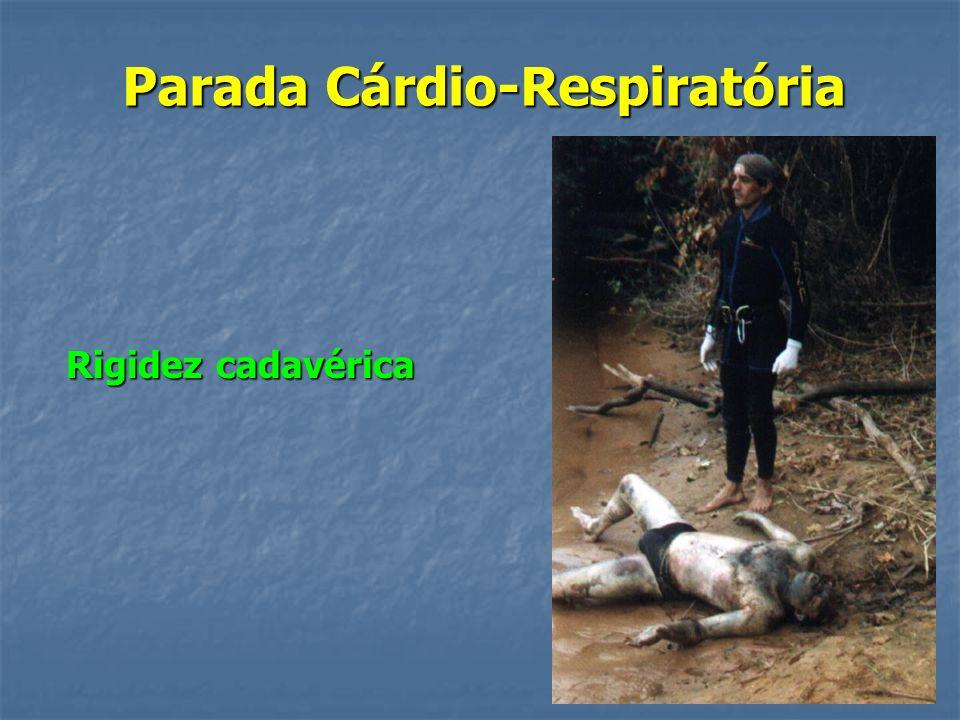 Parada Cárdio-Respiratória Complicações da RCP: Fraturas e luxações de costelas; Fraturas e luxações de costelas; Pneumotórax; Pneumotórax; Lesão pulm